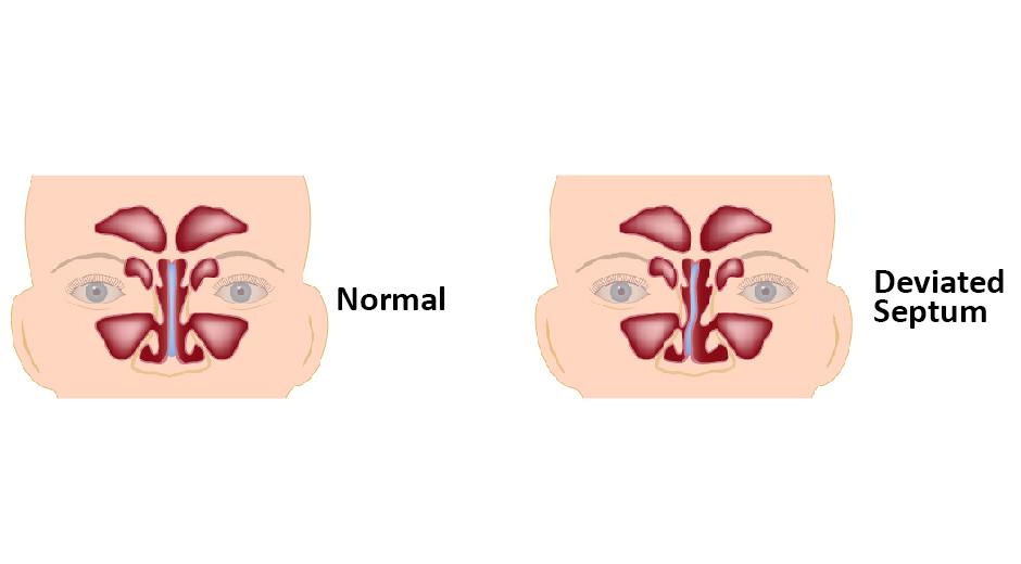 Deviated Nasal Septum Causes Symptoms Treatments