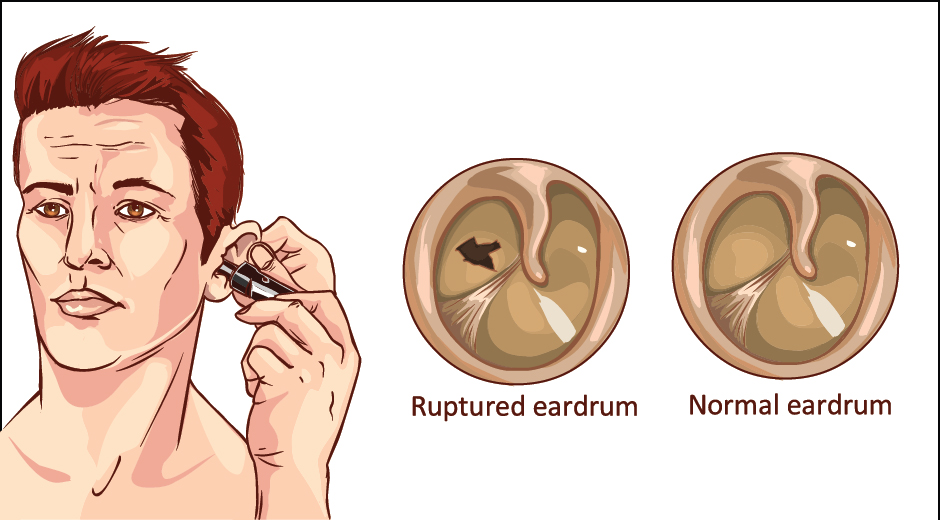 Symptoms of Ruptured Ear Drum | ENT Specialist Coimbatore